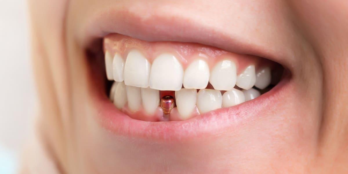 Zastosowanie lasera w stomatologii